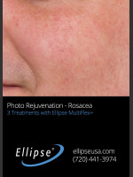After Photo Before and After 3 Treatments of Rosacea - Prejuvenation Before & After
