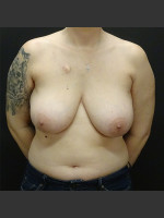 Before Photo Breast Reconstruction Case #1 - Prejuvenation Before & After