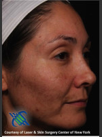 Before Photo Female Full Face Fraxel Treatment  - ZALEA Before & After
