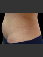 After Photo Body Contouring Treatment #117 - Prejuvenation Before & After
