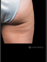 After Photo CoolSculpting on Woman's Outer Thigh - ZALEA Before & After