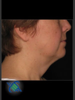 After Photo Treatment of Neck with Laser Liposuction - Prejuvenation Before & After