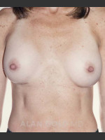 After Photo Breast Augmentation 592 - ZALEA Before & After