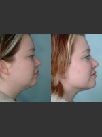 Before Photo Submental and arm localized liposuction - ZALEA Before & After