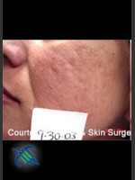 Before Photo Treatment of Facial  Acne Scars Left Side - Prejuvenation Before & After