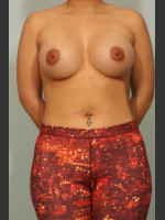 After Photo Breast Augmentation - ZALEA Before & After