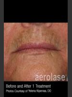 Before Photo Treatment of Melasma #317 - ZALEA Before & After
