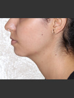 After Photo Chin Augmentation - Prejuvenation Before & After