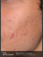 After Photo Acne Scaring Treatment with Picosure - ZALEA Before & After