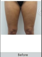 Before Photo Vanquish for Thighs - Prejuvenation Before & After