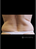 Before Photo CoolSculpting on Woman's Flanks #2 - Prejuvenation Before & After