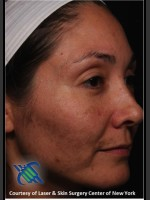 Before Photo Facial Skin Rejuvenation of Face - ZALEA Before & After