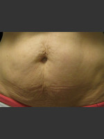 Before Photo Body Contouring Treatment #124 - ZALEA Before & After