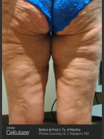 Before Photo Cellulaze Cellulite Treatment - ZALEA Before & After