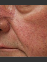 Before Photo Dr. Langdon IPL Treatment  - ZALEA Before & After