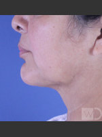 After Photo SmartLipo Liposuction of Lower Face - ZALEA Before & After