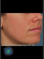 After Photo Facial Acne Scaring Treatment - Right Side  - Prejuvenation Before & After