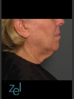 Before Photo Treatment of Lower Face with Ultherapy - ZALEA Before & After