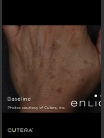 Before Photo Pigmented Lesions on Hand with Enlighten - ZALEA Before & After