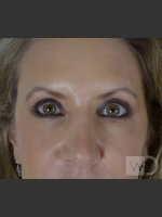 After Photo Upper Blepharoplasty - ZALEA Before & After