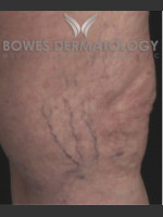 Before Photo Spider Vein Treatment - ZALEA Before & After