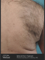 Before Photo Hair Removal of Back with Vectus - Prejuvenation Before & After