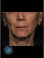 Before Photo Treatment of Facial Laxity with Profound - ZALEA Before & After