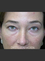 Before Photo Upper and Lower Blepharoplasty - Patient 6 - ZALEA Before & After