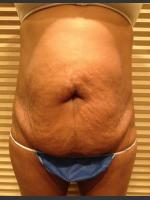 Before Photo Dr. Palmer Tummy Tuck 01  - Prejuvenation Before & After