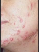 Before Photo Quanta Eterna IPL Acne Treatment #79 - Prejuvenation Before & After