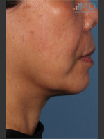 After Photo Ultherapy Skin Laxity Treatment of Lower Face - ZALEA Before & After