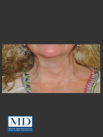 After Photo Neurotoxin of Neck 132 - ZALEA Before & After