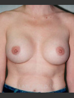 After Photo Breast Augmentation 582 - ZALEA Before & After