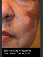 Before Photo Treatment of Melasma #319 - Prejuvenation Before & After