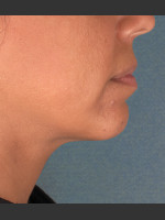 After Photo Kybella Treatment 34 Year Old Female - ZALEA Before & After