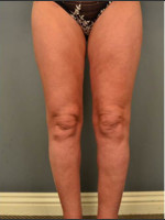 After Photo Circumferential Liposuction #46 - ZALEA Before & After