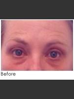 Before Photo Undereye Filler + Exilis Elite Radiofrequency Skin Tightening - ZALEA Before & After