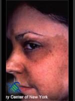 After Photo Treatment of Facial  Cafe au Lait - Prejuvenation Before & After