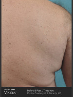 After Photo Hair Removal of Back with Vectus - Prejuvenation Before & After