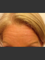 Before Photo Before & After Botox - ZALEA Before & After