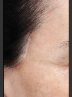 Before Photo Scar on right and left temple at hairline  - Prejuvenation Before & After
