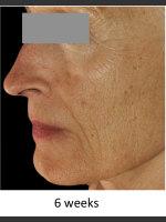 After Photo DefenAge Skincare Clinical Power Trio - Prejuvenation Before & After