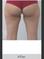 After Photo CoolSculpting+ for Banana Roll (Under Buttock Roll) - Prejuvenation Before & After