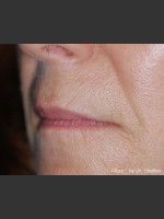 Before Photo Treatment of Perioral Wrinkles - Prejuvenation Before & After