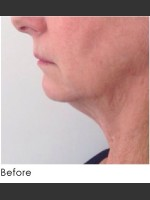 Before Photo Kybella and Filler for Jawline Definition  - ZALEA Before & After