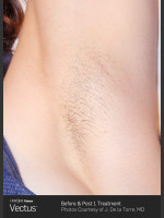 After Photo Hair Removal of Under Arms with Vectus - ZALEA Before & After