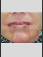 After Photo Vbeam Laser of Post-operative Bruising - ZALEA Before & After