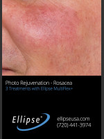 Before Photo Before and After 3 Treatments of Rosacea - Prejuvenation Before & After