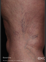 Before Photo Back of Thigh Leg Vein Clearance  - ZALEA Before & After