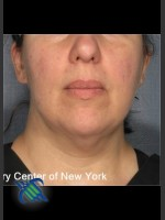 After Photo Laser Liposuction Submental Fat Treatment - ZALEA Before & After